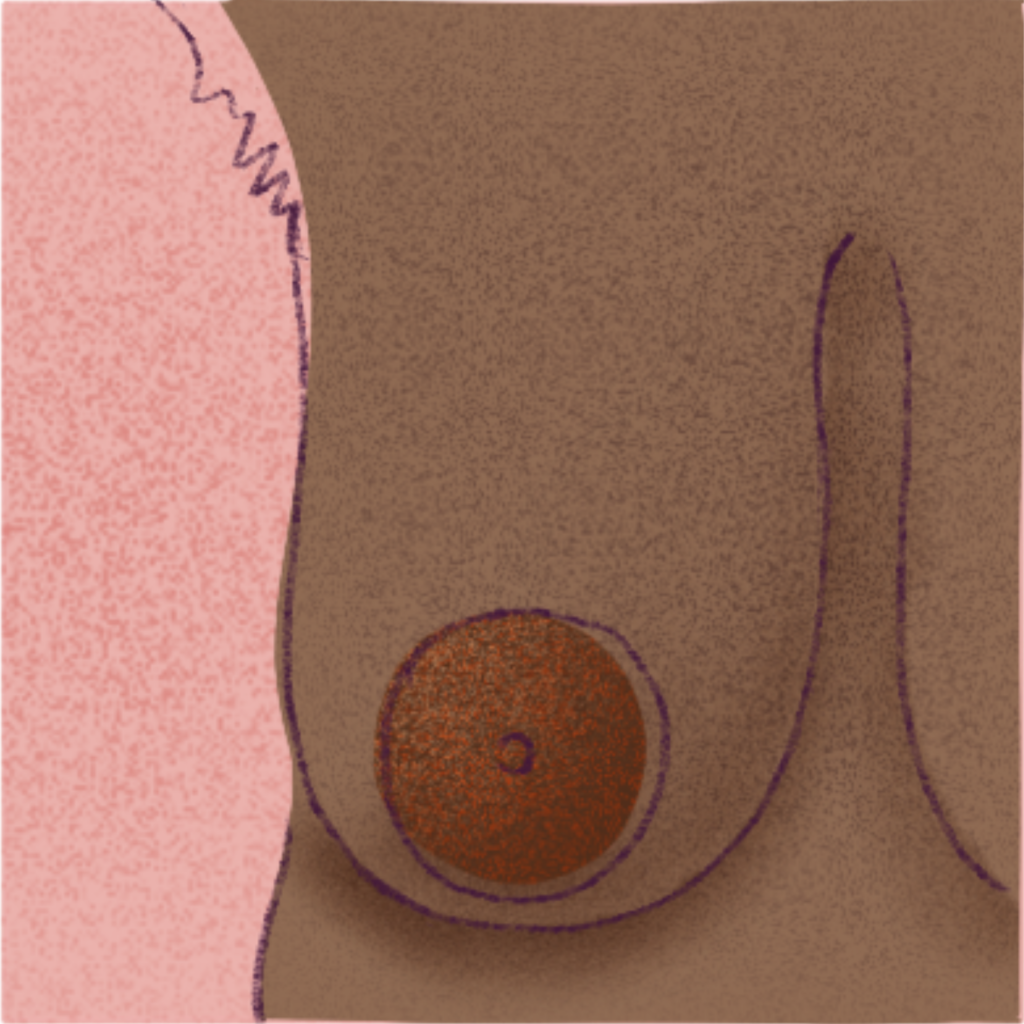 Look closely at your nipples and make sure there's nothing suspicious